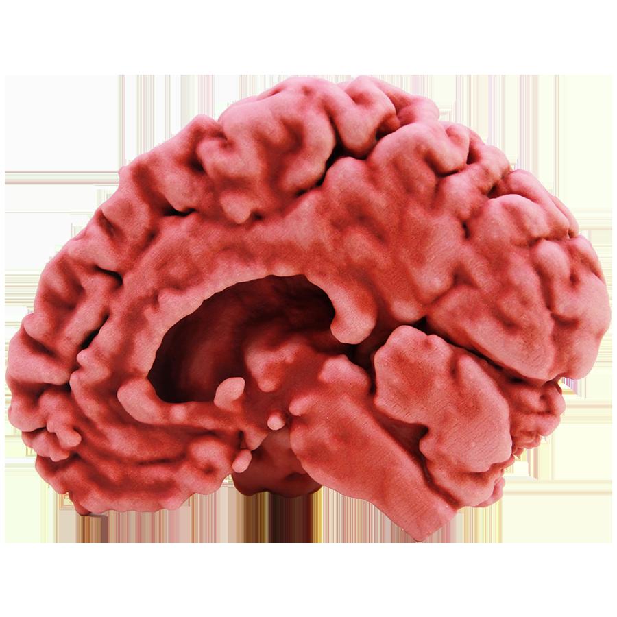 60101-Brain Half.png