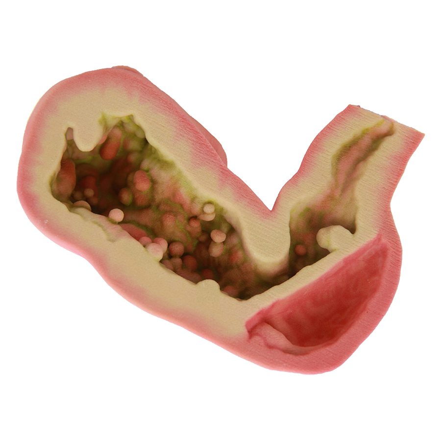 60110-Stomach Half.png
