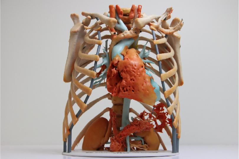 medical-model.jpg