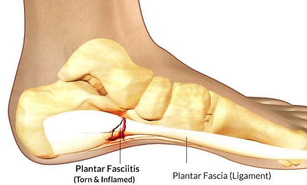 plantar fascia pain — Blog — Ashton Podiatry