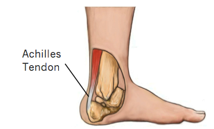 Achilles Tendon Injuries and Treatment