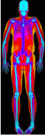 Man or Sea Elephant? DXA body composition scan, fat is yellow - Copyright: Life-Sparring.com