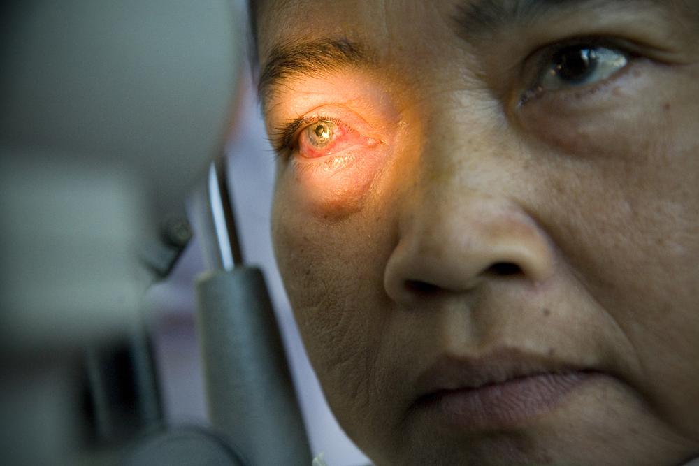 Bugbee-02923-cornea.jpg