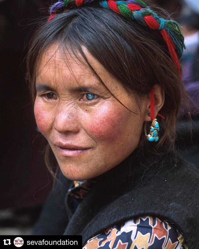 Tibetan Plateau, 2001. Over that summer I traveled overground in #Tibet documenting nomadic traditions and a series of makeshift #sightsaving #eyecamps on the Chukortang plains. We discovered many women like this one, in the prime of their adult lives, who were going #blind from cataracts brought on by excessive exposure to high altitude UV. Thanks to @sevafoundation for unearthing some of the #Fujichrome transparencies from this project and giving them more mileage. . . #thetibetans #nomads #curableblindness #eyephotographer #shotonfilm @nikonusa #travel #himalayas #intofocus #seetheworld @sevafoundation with @get_repost ・・・ In just 15-minutes, a person's life can be changed forever with #cataract surgery. With your help, we can restore sight and independence all over the world [Image: A woman with cataract] . . . . . . #cataract #eyecare #visioncare #vision #eyehealth #visionhealth #healthcare #surgery #ophthalmology #visioninsight