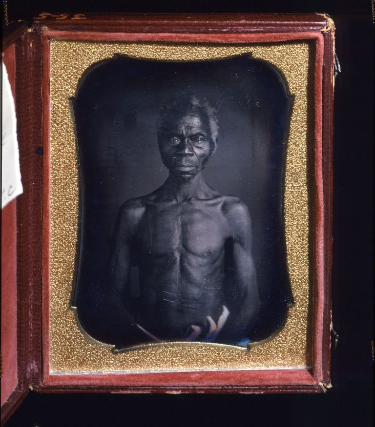 "The daguerrotypes Agassiz commissioned are "" the earliest known photographs of identifiable American slaves and...also among the earliest anthropological photographs ."""