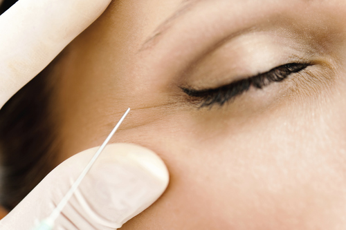 Anti-Wrinkle Injections The Aesthetic Clinic