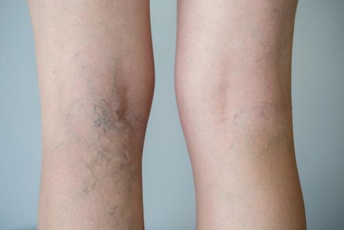 Leg Veins The Aesthetic Clinic