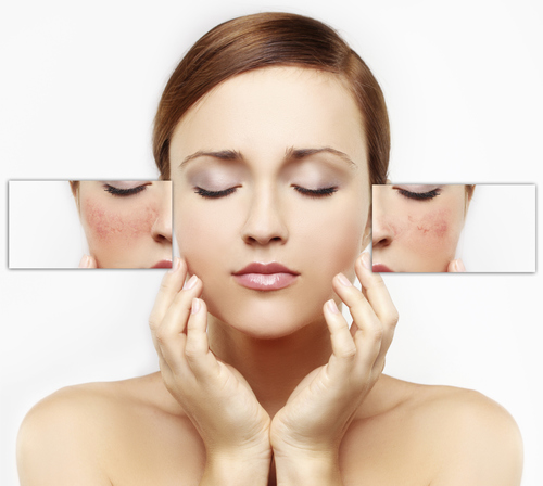 Photo Rejuvenation The Aesthetic Clinic