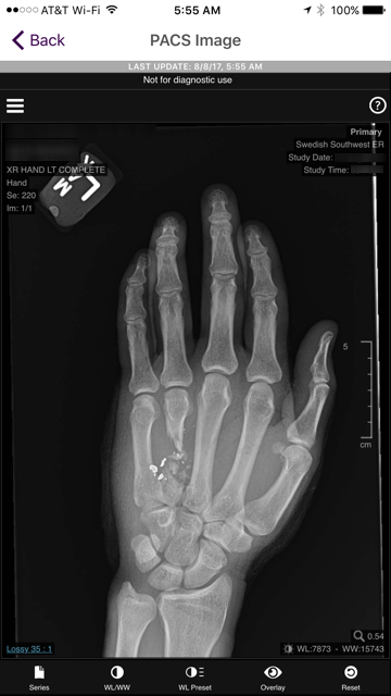 Hand xray.PNG