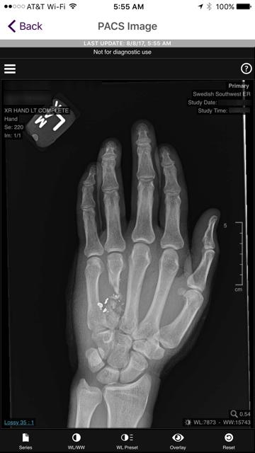 Hand xray.PNG