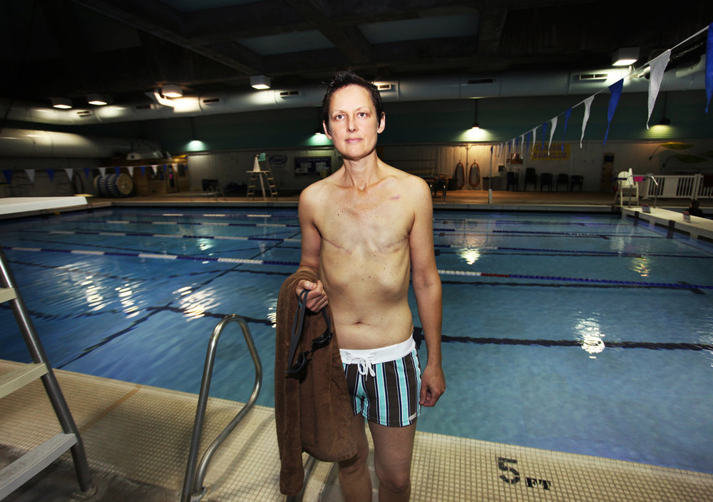 "News Feature >>>   ""Cover Up""  —a breast cancer survivor fights topless swimming ban"