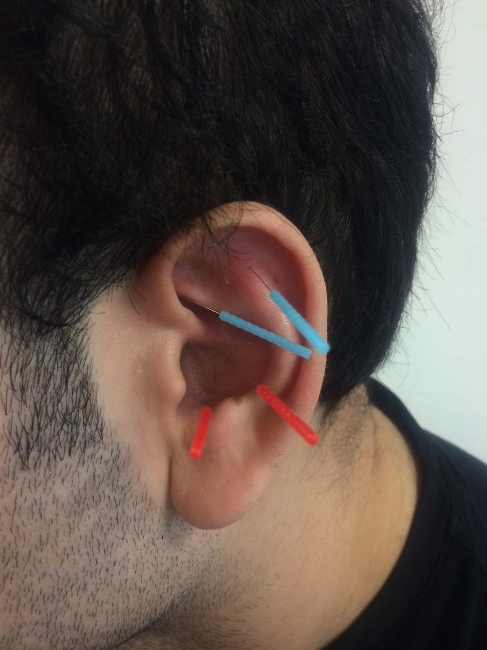 ear acu.jpeg