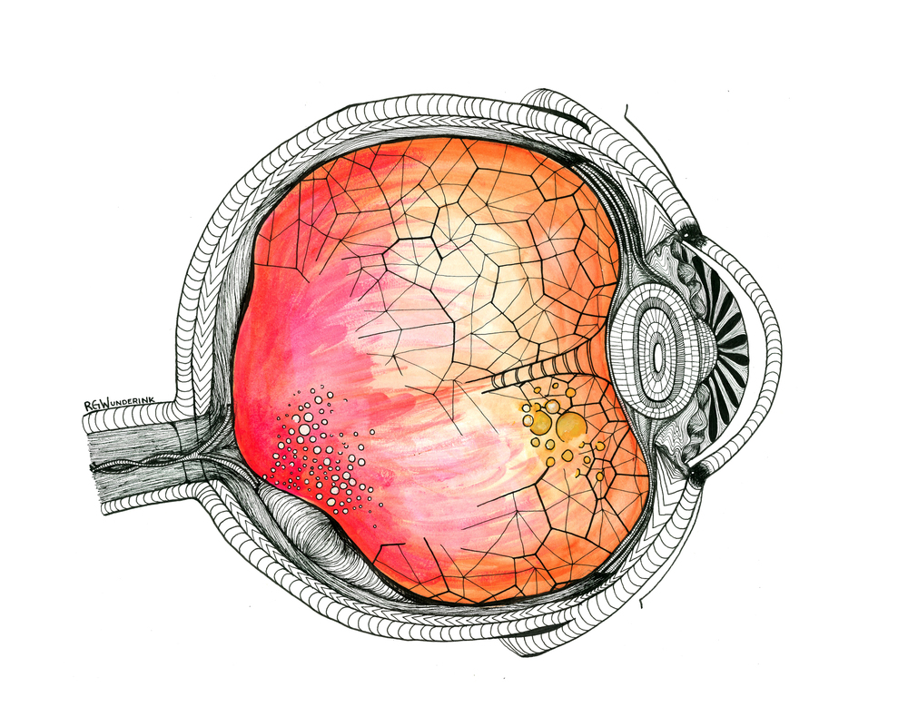 """dissonant anatomy: vitreous detached eye"""