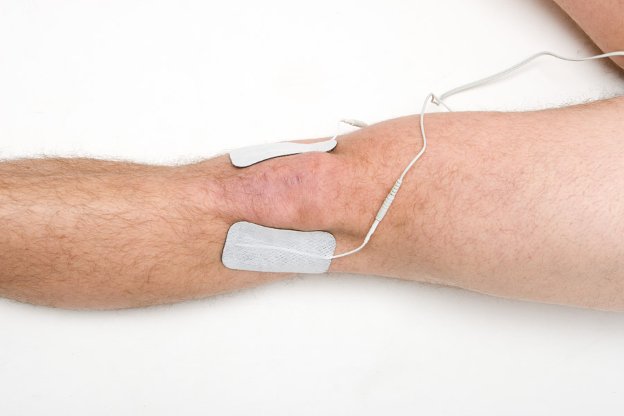 knee pain electrode placement