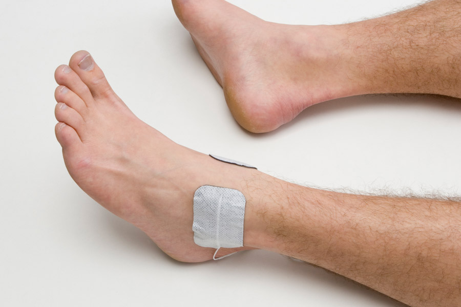 ankle injury electrode placement