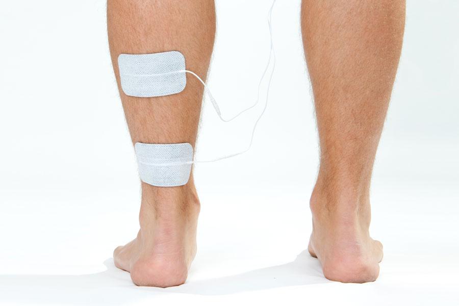 achilles electrode placement