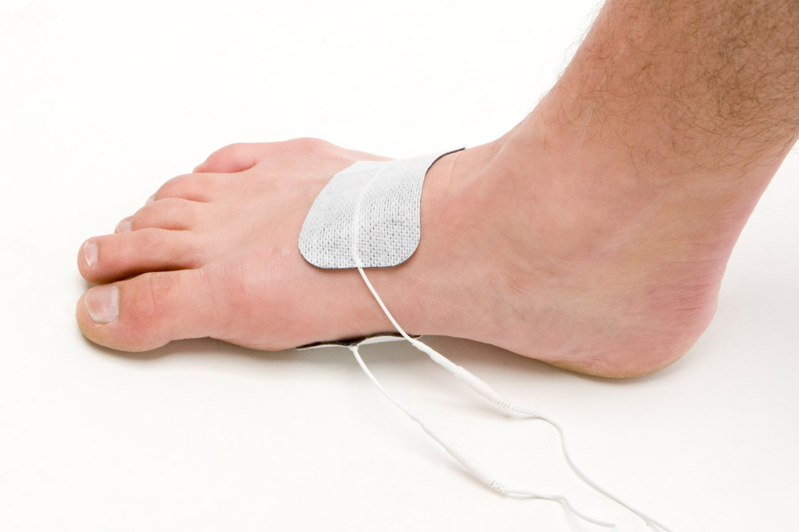 foot injury electrode placement