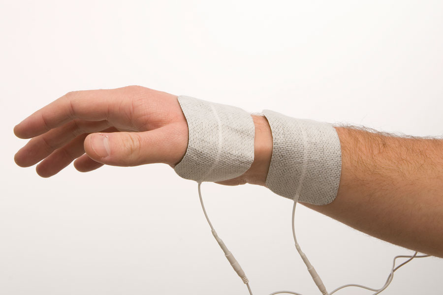 hand injury electrode placement