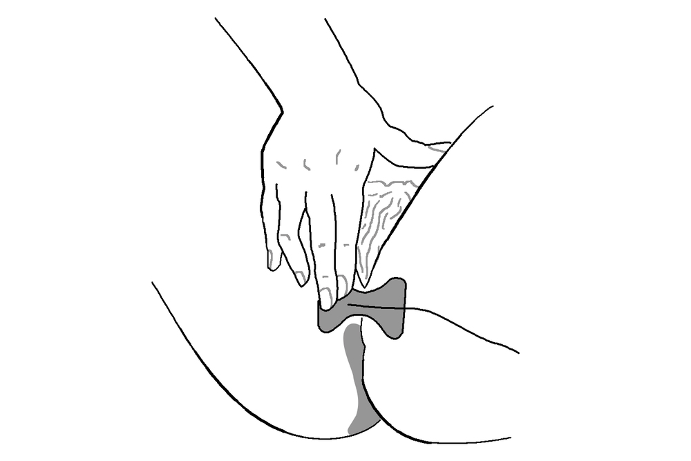 perineal electrode placement
