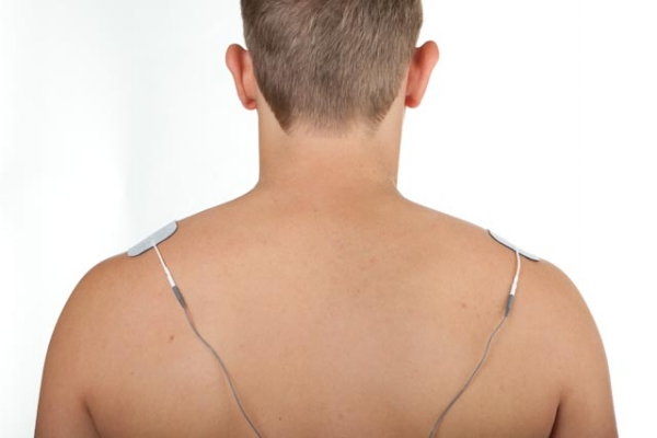 shoulder pain electrode placement