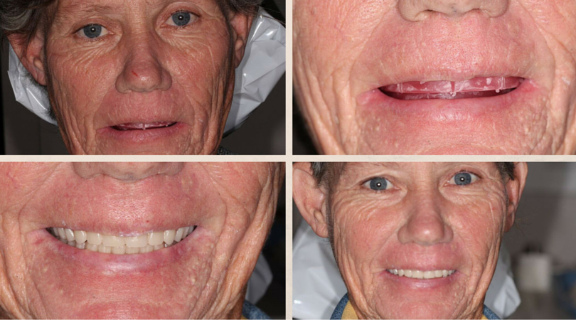 Before & After: Dentures