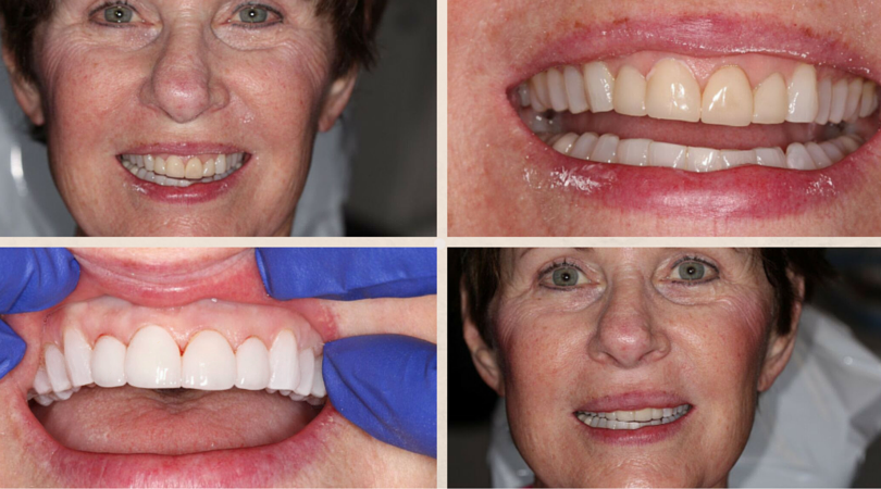 Diane Before & Afters: Veneers