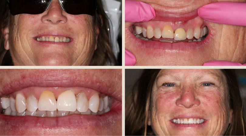 Denise's Before & After: Implants Due To Abscessed Tooth