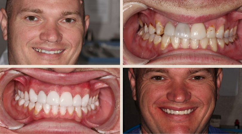 Greg's Before & After: Neglect With Full Mouth Reconstruction