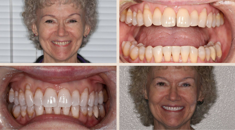 Lynita's Before & After: Invisalign