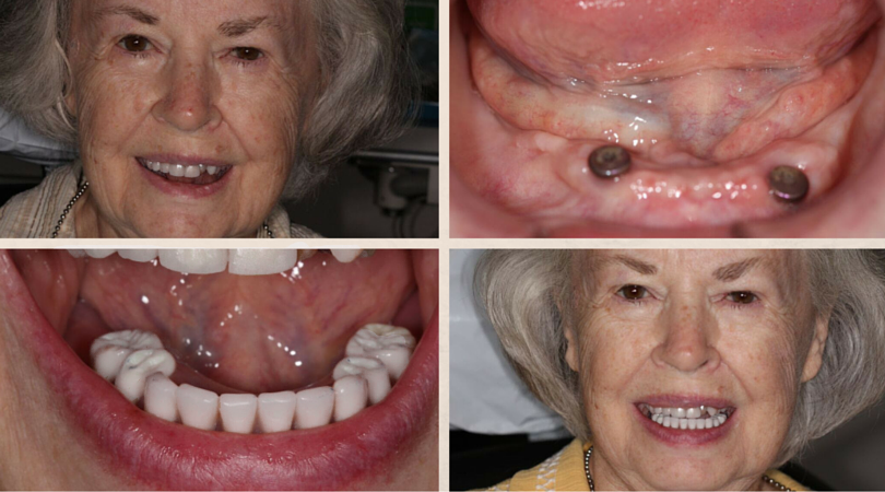 Mary's Before & After: Implant Stabilized Denture