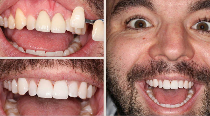 William's Before & After: 2 Front Teeth Replacement
