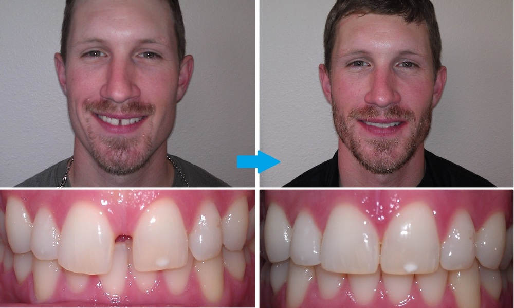 invisalign-diastema-before-and-after.jpg