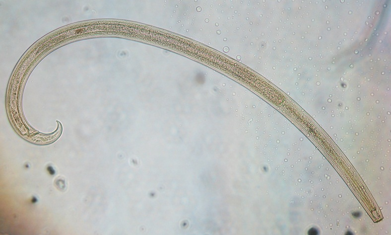 Soil nematode   Photo attribution: Cristina Menta [CC BY 3.0], via Wikimedia Commons
