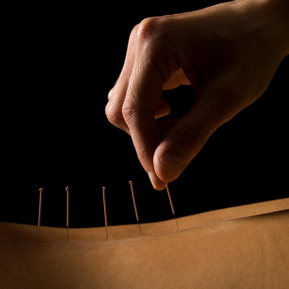arthritis-acupuncture.jpg