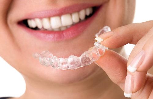 Die Fehlstellung ihrer Zähne kann ganz unbemerkt korrigiert werden: mit unseren transparenten SD Aligner-Schienen -