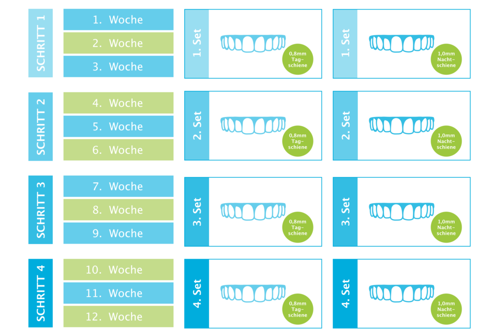 In dieser Reihenfolge kann die Aligner -Zahnkorrektur bis zu 10 Schritte benötigen.