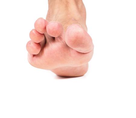 34013421_S_hammer_toe_man_foot_toes_long.jpg