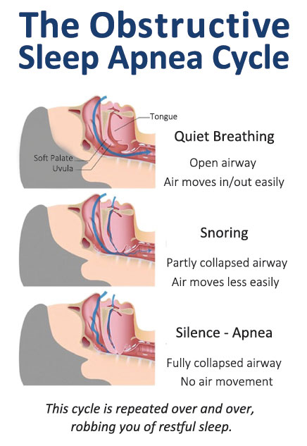 sleep-apnea-cycle.jpg
