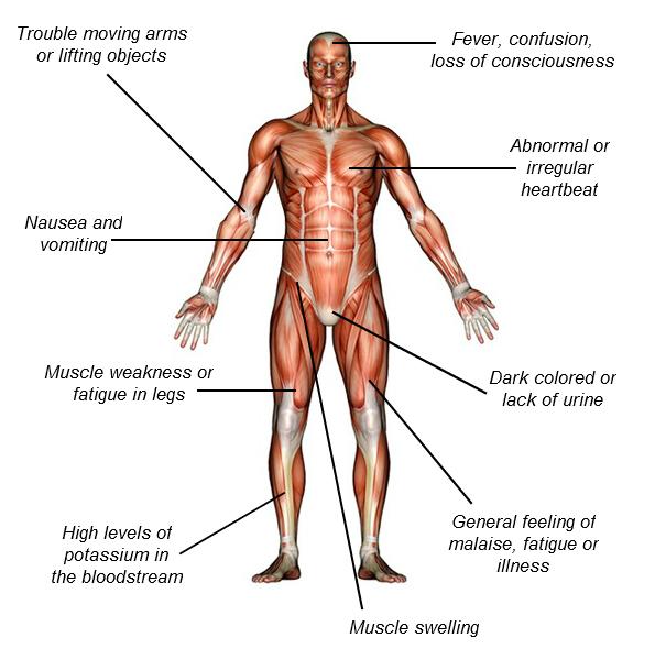 rhabdomyolysis-infographic1.png
