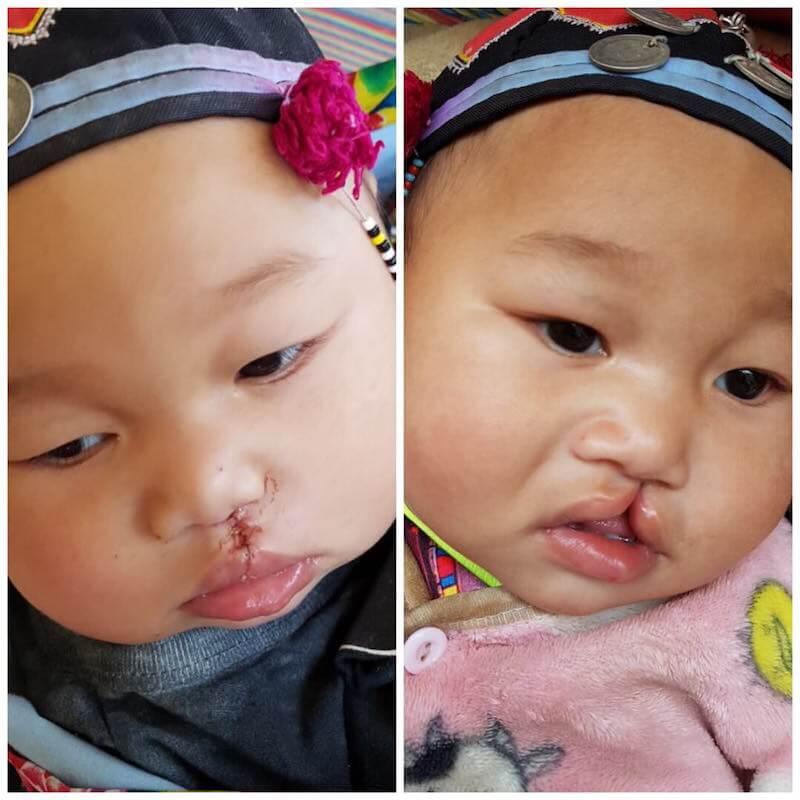 eatdrinklaos-vientiane-bridge-the-gap-baby-cleft