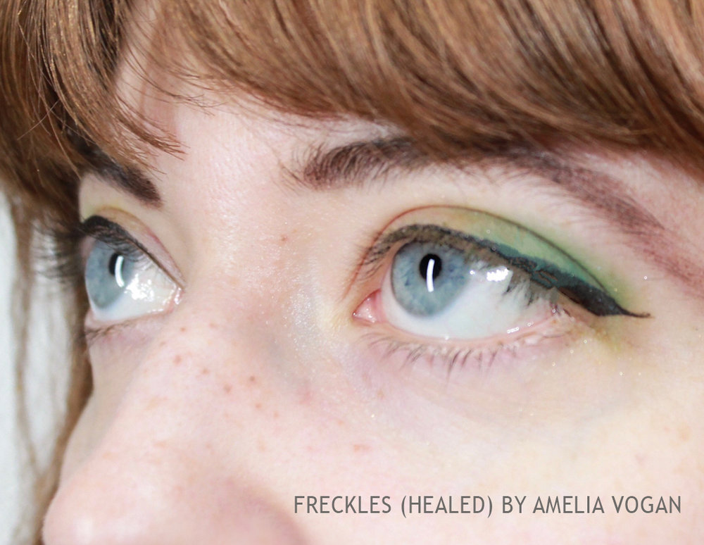 FRECKLES 3.jpg
