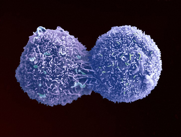 Cancer cell dividing, image from Science Museum