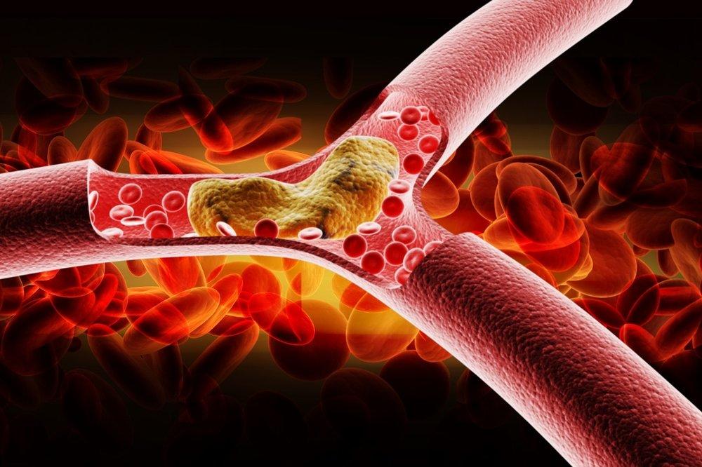 colesterol1.jpg