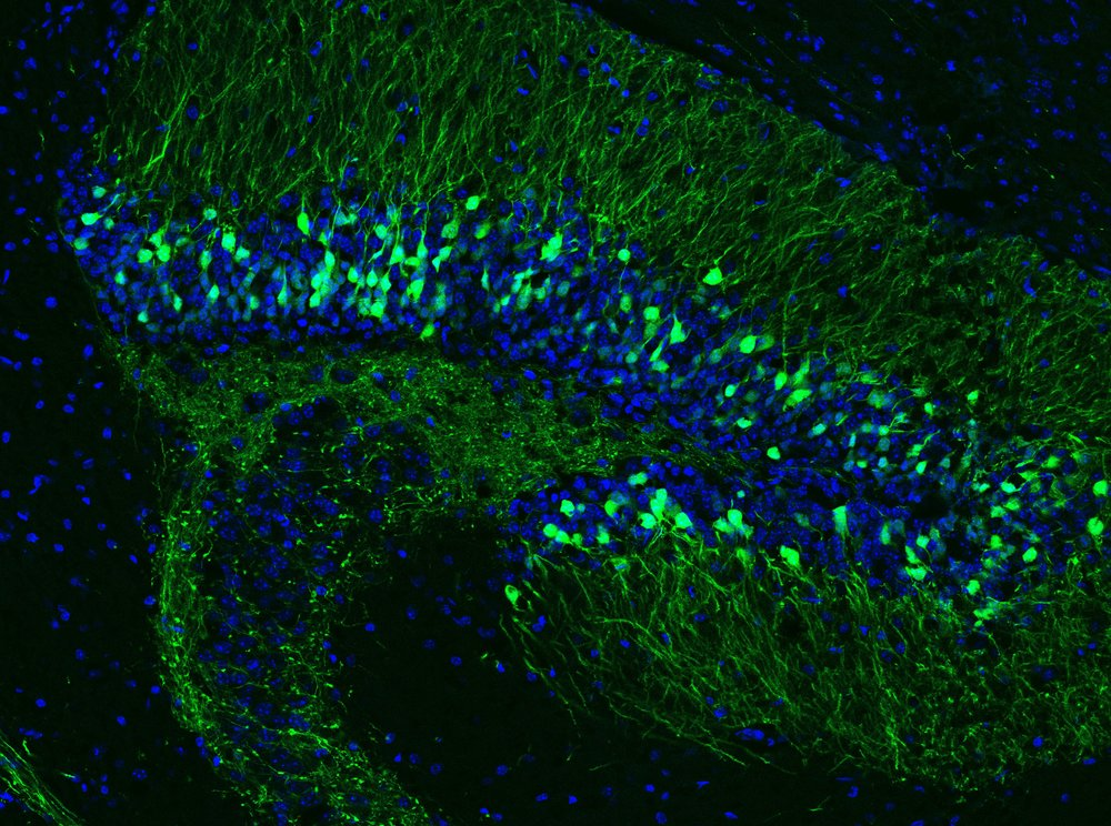 Sparsely labeled hippocampal neurons