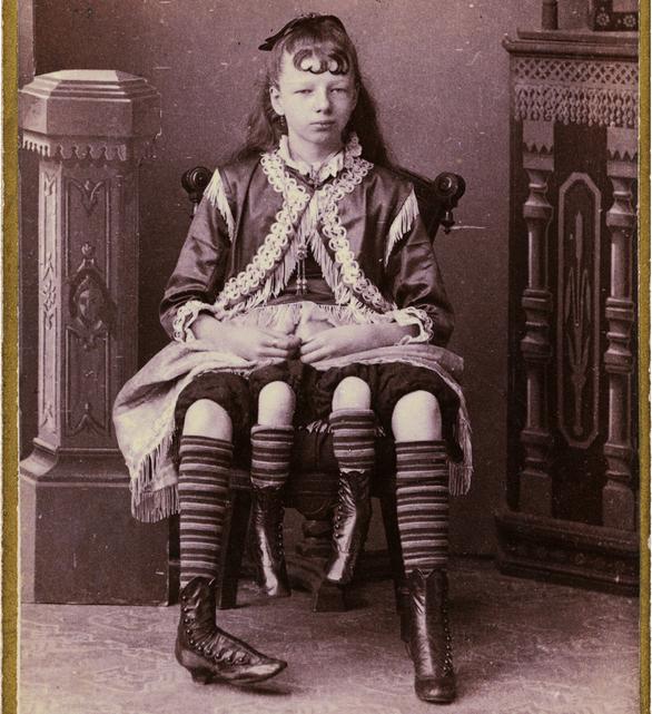 Myrtle Corbin, photographed by Charles Eisenmann