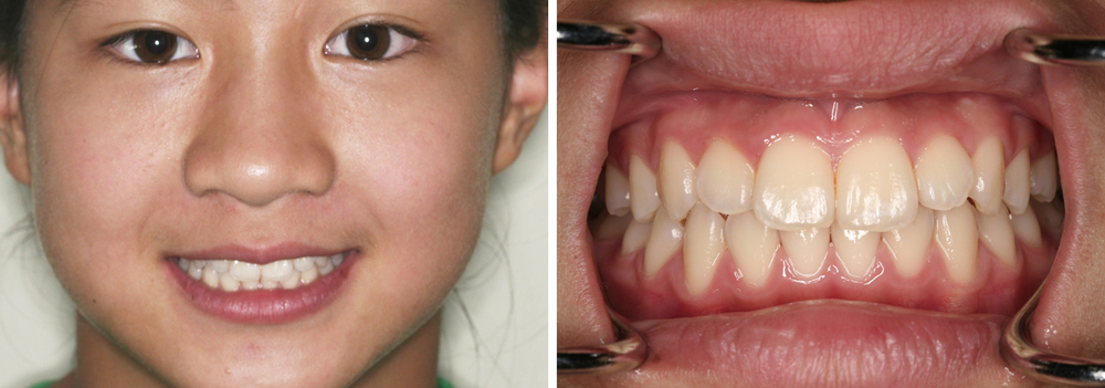 Pediatric Case #2: Results after use of interceptive orthodontic appliance