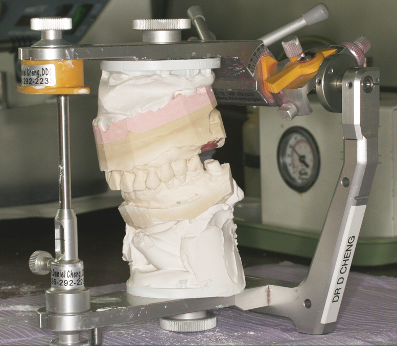 One of Dr. Cheng's many articulators