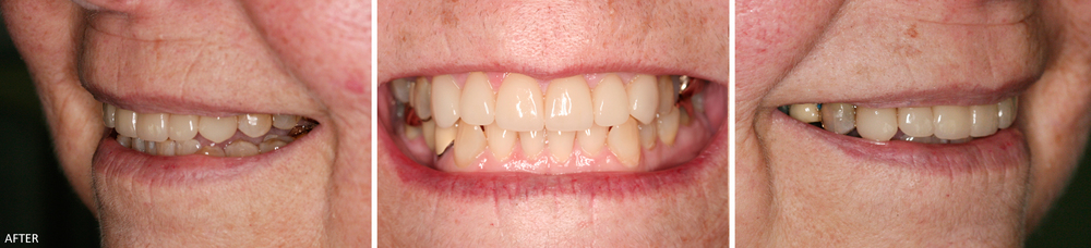 Upper Anterior Teeth Veneer Case #1: After treatment. Upper veneer teeth shade match the natural shade of lower anterior teeth.