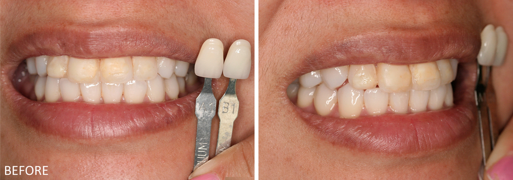 Upper Anterior Teeth Veneer Case #2: Before treatment