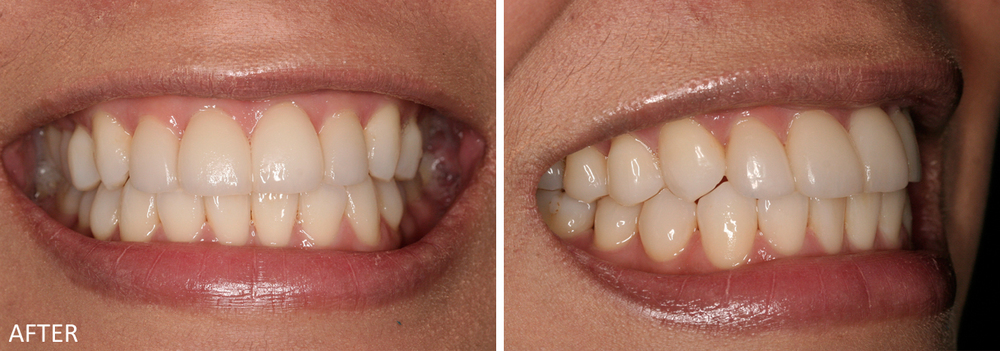 Upper Anterior Teeth Veneer Case #2: After treatment